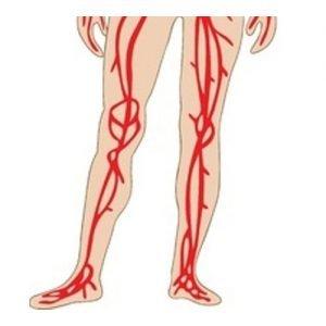 Ecocolordoppler arterioso arti inferiori